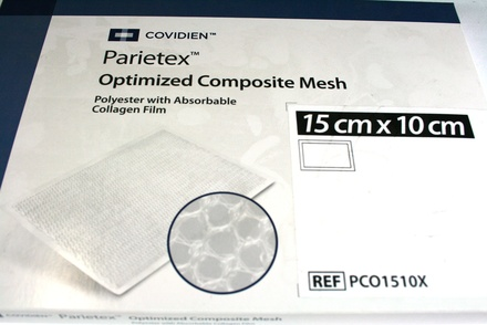 PCO1510X Covidien Parietex Optimized Composite Mesh, 15 cm x 10 cm